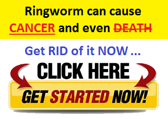 Ringworm Can Cause Death