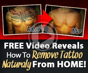 How To Remove A Tattoo