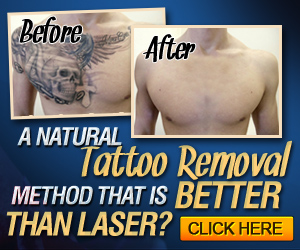 Remove Tattoo with Hydrogen Peroxide