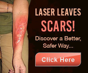How to Remove Tattoo by Laser